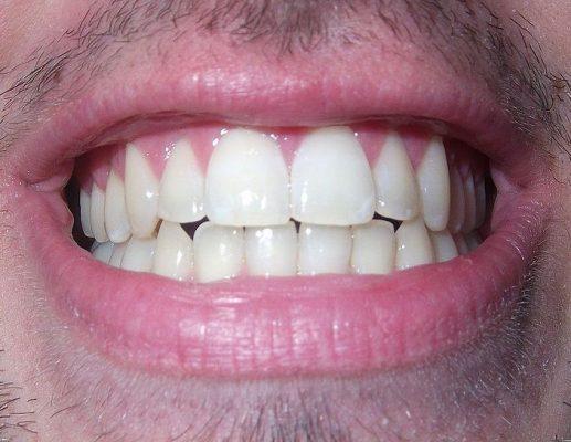 5 טיפים לשמירה על בריאות הפה