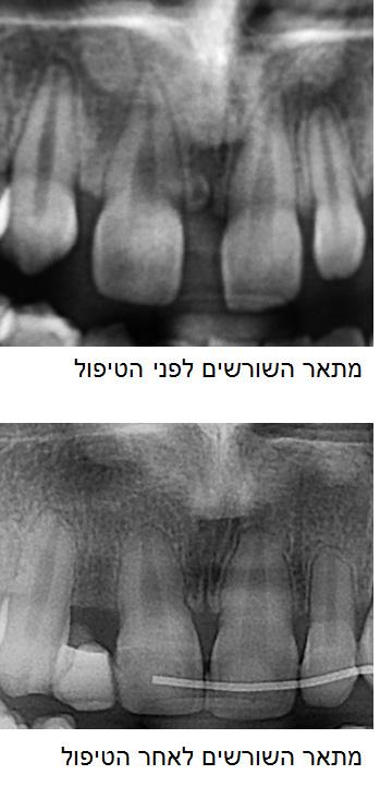 צילום לפני ואחרי הטיפול