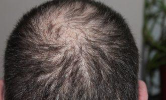 השתלת שיער במפרצים בטורקיה